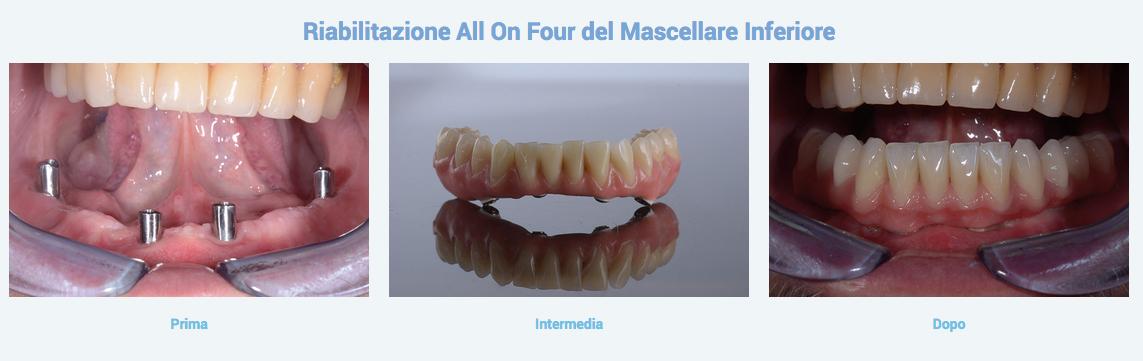 I migliori Impianti dentali con la soluzione computer guidata